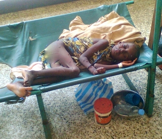 Child Suffering from Malnutrition in Mudug