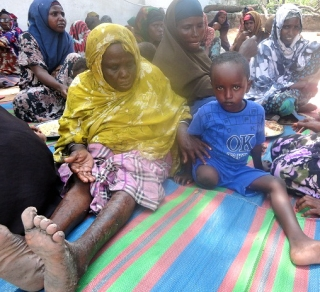 5-year-old disabled boy with his mother, Amina Mohamed, at feeding center